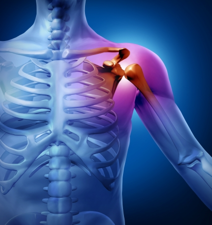anatomy body: Human shoulder pain with an anatomy injury caused by sports accident or arthritis as a skeletal joint problem or as a medical health care illustration of  a diagnostic chart. Stock Photo