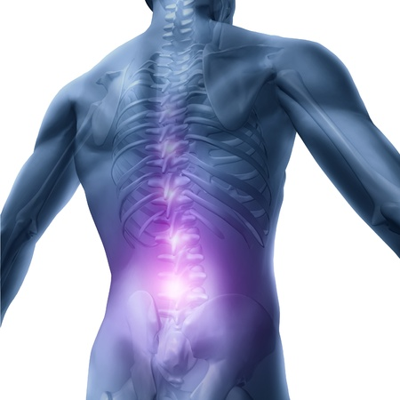 Back problems and human backache pain with an upper torso body skeleton showing the spine and vertebral column in red highlight as a medical health care concept for spinal surgery and therapy on white. Stock Photo