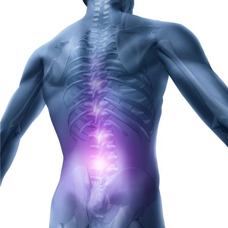 dolor de espalda: Los problemas de espalda y dolor de espalda con un esqueleto humano del torso superior del cuerpo que muestra la columna y la columna vertebral en detalle en color rojo como un concepto de salud la atención médica para la cirugía de la columna vertebral y el tratamiento en blanco. Foto de archivo