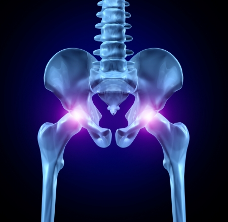 bone fracture: Hip joint pain with an x-ray medical illustration of a frontal view close up macro of a human skeleton with a painful area in red as a sports injury or a physical work accident in the leg bone needing hip replacement surgery. Stock Photo