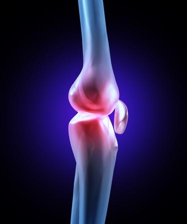 accidente de trabajo: Dolor de articulaci�n de la rodilla con una ilustraci�n de rayos X m�dicos de una vista lateral de cerca macro de un esqueleto humano con el �rea del dolor, en color rojo con una lesi�n deportiva o un accidente de trabajo f�sico en el hueso de la pierna.