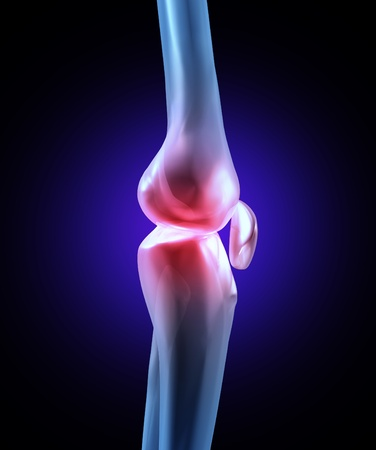 Knee joint pain with an x-ray medical illustration of a side view close up macro of  a human skeleton with the painful area in red showing a sports injury or a physical work accident in the leg bone. Stock Illustration - 12353890