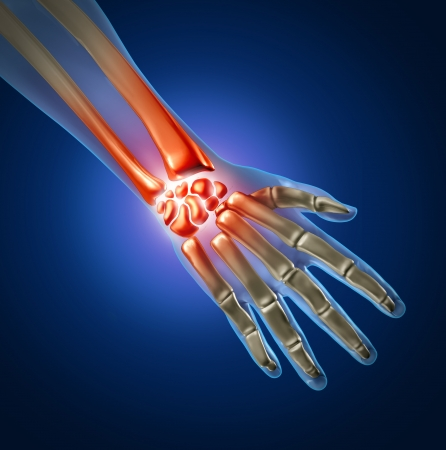 wrist pain: Human hand and wrist pain caused by arthritis and sports or carpal tunnel syndrome injury in the hand joint as an anatomy with skeleton and highlighted injured body part as a medical and health care icon