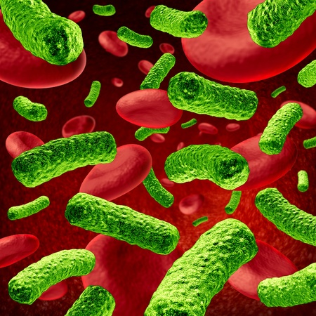 sepsis: Bacteria Blood Infection or bacterial sepsis as a medical illustration  Stock Photo