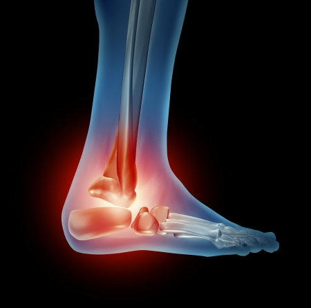 foot pain: Ankle foot pain with a skeleton of the walking body part with bones in red