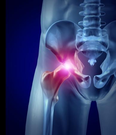 Dolor en la cadera como una articulación inflamada con una ilustración de rayos X médicos Foto de archivo