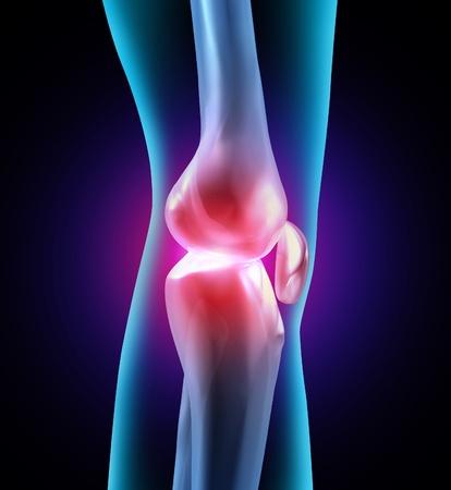 osteoarthritis: Disagio comune e dolorose articolazioni umane come una illustrazione medica con l'anatomia ossea e vedere attraverso parte del corpo che mostra i problemi sanitari con flessibilit� e ortopedici artrite correlata necessit� di terapia assistita medico