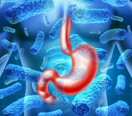 human body parts: Stomach infection and gastroenteritis or gastro caused by a viral bacterial illness by contaminated food with parasitic bugs causing medical flu symptoms as diarrhea, vomiting and abdominal cramps in the human digestive system  Stock Photo