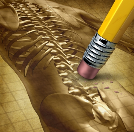 Back pain therapy and backache symbol for the human body as an illustration of a pencil eraser removing part of the lower body as relief from a painful experience with  medical  anatomical skeleton bones on old parchment  illustration