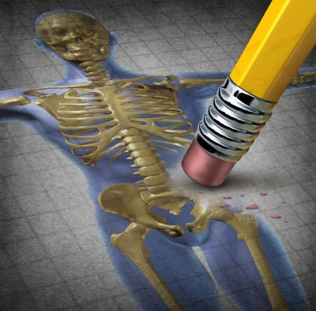 osteoporosis: Símbolo la osteoporosis humana de deterioro del tejido óseo para una enfermedad con síntomas médicos de baja masa ósea y fragilidad del esqueleto con una ilustración de un lápiz borrando el cuerpo