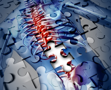 broken back: Human back disease medical concept with a jigsaw puzzle texture and a piece missing as a broken skeleton anatomy and a symbol of the spine and joint pain caused by inflamation