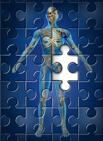 Human skeleton disease and osteoporosis of the hip bone concept with a puzzle texture and a missing piece as a medical and health care symbol of orthopedic and aging deterioration illness  photo
