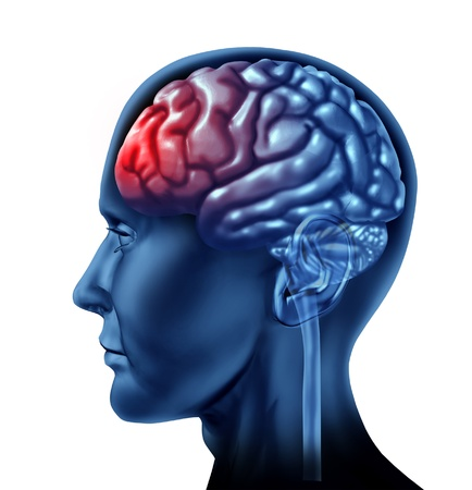 brain injury: Migrain head ache as a human head with a red brain on a white isolated background  Stock Photo