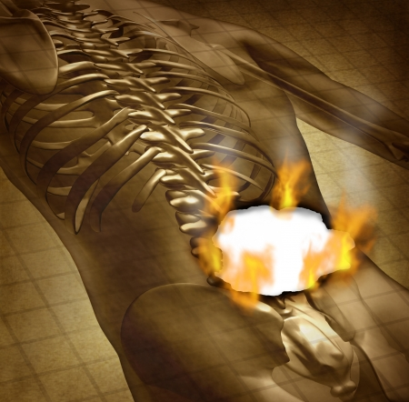 back  view: Human burning back pain and backache medical concept with a grunge old document of an upper torso body skeleton with the spine and vertebral column being burnt with fire flames and smoke as a health care symbol for spinal problems