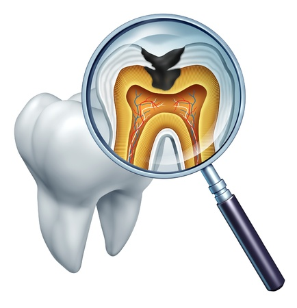 tooth root: Tooth cavity close up and cavities symbol showing a magnifying glass with a cross section of a tooth anatomy in decay due to bacteria and acids in oral health care showing rotting and disease due to lack of brushing  Stock Photo