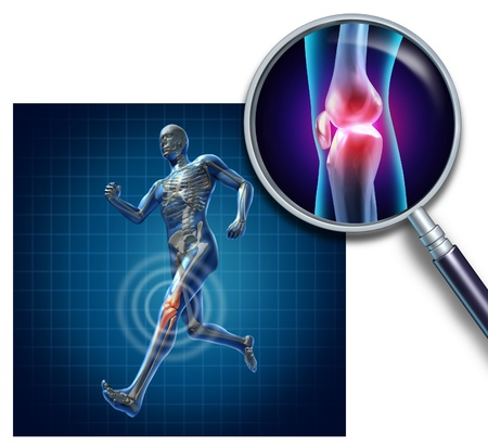 knee joint: Sports knee injury with a running athlete showing the anatomical skeleton with a red highlight on the knee magnified with a magnifying glass as a symbol of body joint pain