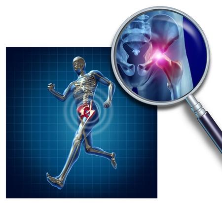 Deportes lesión en la cadera con un atleta que corre mostrando el esqueleto anatómico con un toque de luz roja en las caderas ampliadas con una lupa como símbolo del dolor de cuerpo común Foto de archivo