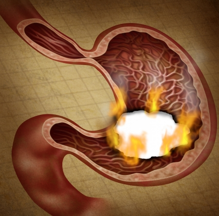 nausea: Stomach ulcer and burning indigestion pain in the digestive system with a medical illustration of the human digestion organ with a hole in the document that has a burn with flames as a health care symbol on a grunge texture  Stock Photo