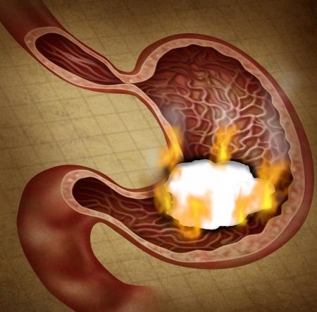 ulc�re: Ulc�re de l'estomac et de l'indigestion de br�lure dans le syst�me digestif avec une illustration m�dicale de l'organe de digestion humaine avec un trou dans le document qui a une br�lure avec des flammes comme un symbole des soins de sant� sur une texture grunge