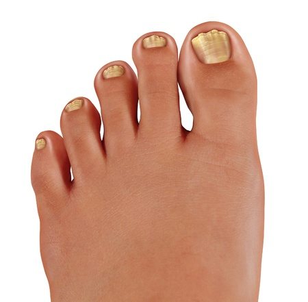 ToeNail fungus close up with a human foot with infected toe nails as a symbol of treating and diagnosing feet with a fungal diseases in the medical field of podiatry isolated on a white background  photo
