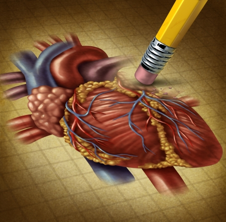 heart attack: Losing human heart health and a decline in blood circulation causing problems for the cardiovascular system as a pencil eraser erasing an old grunge medical illustration on parchment paper  Stock Photo