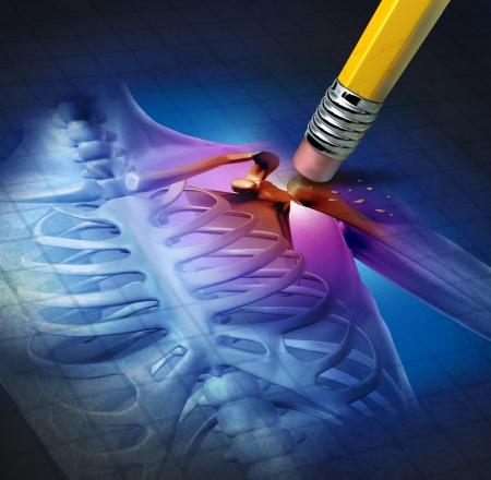 Menselijke schouder pijn met een x-ray van een lichaam anatomie met het pijnlijke gebied worden gewist door een potlood als de gezondheidszorg medische symbool van de behandeling van een chronische ziekte die wordt veroorzaakt door een ongeval of artritis als een skelet gezamenlijke genezing