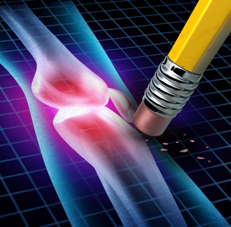 de rodillas: Rodilla humana alivio del dolor con una radiografía de una anatomía cuerpo con el área dolorosa se eliminen por un lápiz como un símbolo de salud médica causada por accidente o la artritis como una cura articulación esquelética