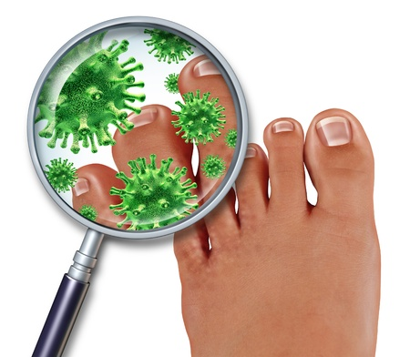 Foot Fungus disease with a close up of the human body showing toes with green bacteria or virus under a magnifying glass with illness of the skin as a podiatry or podiatric medicine concept  photo