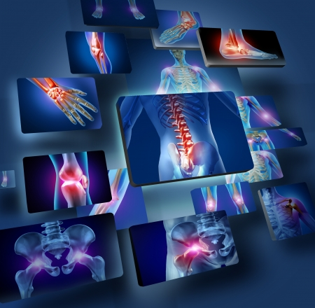 Human joints concept with the skeleton anatomy of the body with a group of panels of sore joints glowing as a pain and injury or arthritis illness symbol for health care and medical symptoms