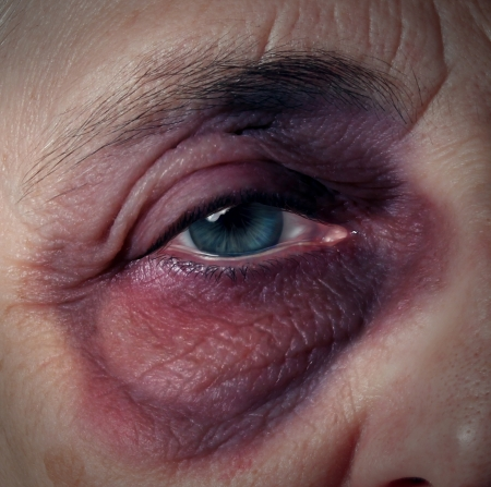 Senior abuse or elder mistreatment as an old person with a black eye bruised and injured from domestic violence on older aging adults fromn a retirement home or caretaker who has broken the trust as a legal health care concept