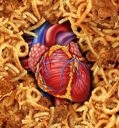 Heart disease food medical health care concept with a human heart organ surrounded by groups of greasy cholesterol rich fried foods as a symbol of arteries clogging due to fat in the diet  Banco de Imagens
