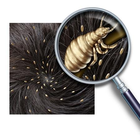 piojos: Problema de los piojos como un concepto médico de una lupa de cerca de una cabeza humana con una infestación de piojos parásitos o huevos para incubar de un insecto piojo como símbolo de la prevención y tratamiento de la diagnosis para niños y adultos