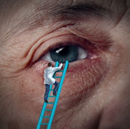eye patient: Medical Eye Care concept with an ophthalmologist or optometrist climbing a ladder to givie a diagnosis on an aging elderly patient that may have vision problems due to cataracts or other ocular diseases