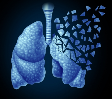 Lung illness and losing human lungs health care concept as a decline in respiratory function caused by cancer or disease as the organ slowly breaks down in little pieces on a black background  Stock Photo - 21492074