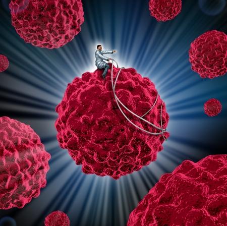 canc�rologie: gestion du cancer et le traitement des cellules canc�reuses comme un concept medcal avec un m�decin guider une cellule maligne loin du corps humain comme un symbole de la recherche dans le traitement et la pr�vention de la maladie mortelle