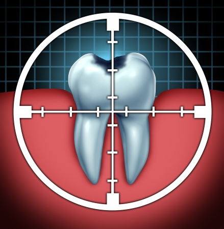 oral surgery: Fight cavities as a tooth cavity close up symbol with a target icon aiming at the oral disease as a health care concept for bone anatomy as a cure and dentist therapy for decay and rotting due to bacteria and acids  Stock Photo