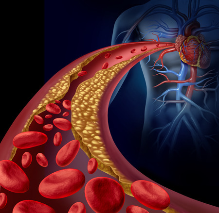 Clogged artery and atherosclerosis disease medical concept with a three dimensional human artery with blood cells that is blocked by plaque buildup of cholesterol Stock Photo