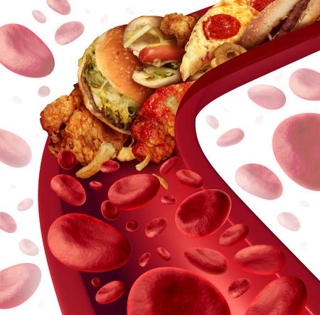 콜레스테롤은 지방을 먹는 등 다이어트와 영양 문제에 대한 건강 위험 은유 햄버거와 튀긴 음식과 건강에 해로운 음식으로 막힌 사람의 혈관에 동맥