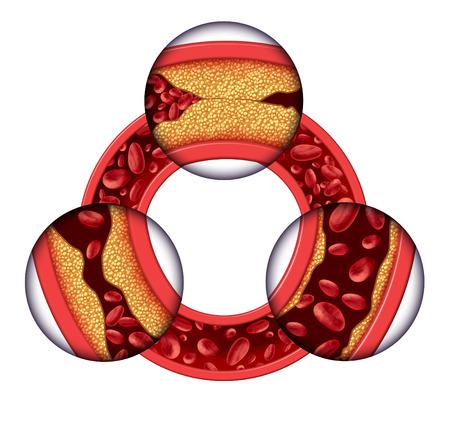 vasos sanguineos: Concepto médico de la enfermedad de las arterias coronarias como una vena circular con la formación de placa gradual resultando en obstrucción de las arterias y la aterosclerosis con un diagrama de la anatomía humana en tres dimensiones que muestra los riesgos de acumulación de colesterol