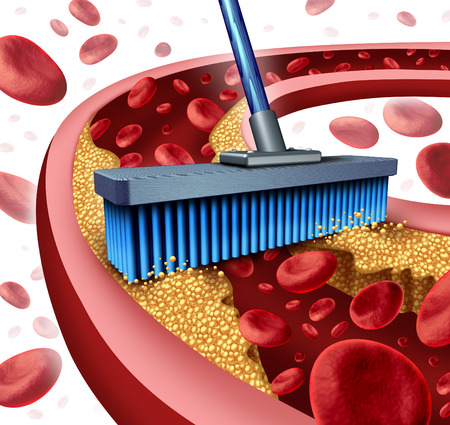clean blood: Cleaning arteries concept as a broom removing plaque buildup in a clogged artery as a symbol of  atherosclerosis disease medical treatment opening clogged veins with blood cells as a metaphor for removing cholesterol as an icon of vascular diseases  Stock Photo