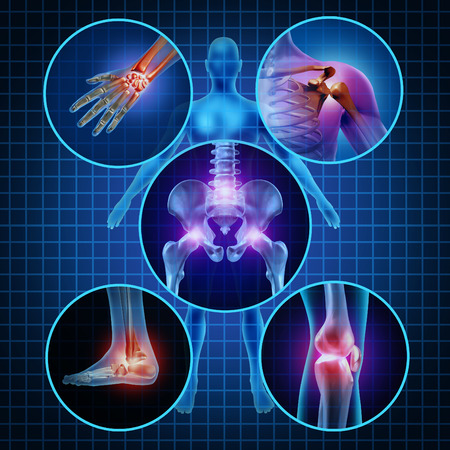 osteoporosis: Dolor en las articulaciones concepto anatomía humana con el cuerpo como un grupo de paneles circulares de zonas doloridas como el dolor y la lesión o la enfermedad de la artritis símbolo para el cuidado de la salud y síntomas médicos debido al envejecimiento o deportes y el trabajo lesiones Foto de archivo