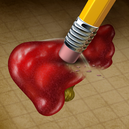 Losing liver function health Stock Photo - 28425037