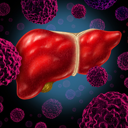 abnormal cells: Human liver cancer organ as a medical symbol of a malignant tumor red cell disease as a cancerous growth spreading through the digestive system by alcohol and other environmental toxic reasons  Stock Photo