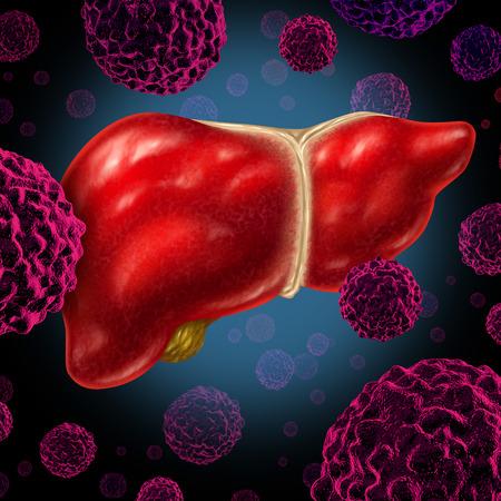 Menschliche Leberkrebs Orgel als medizinisches Symbol eines bösartigen Tumors roten Blutkörperchen als Krebsgeschwür verbreitet durch das Verdauungssystem von Alkohol und anderen toxischen Umweltgründen