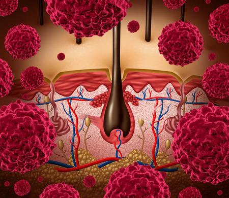 maligno: El c�ncer de piel y el concepto m�dico del melanoma como una anatom�a de la epidermis humana de ser atacado por las c�lulas cancerosas malignas Foto de archivo