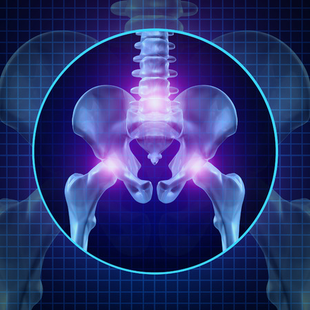 Back joint pain and human backache with skeleton showing the hip spine and vertebral column in glowing highlight as a medical health care concept for spinal surgery and therapy