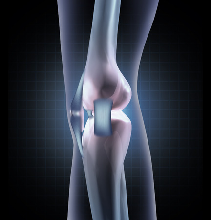 Knee anatomy medical concept as a sideview of a human leg joint with tendons and ligaments as an orthopedic symbol for sports medicine injury or diagnosis  photo