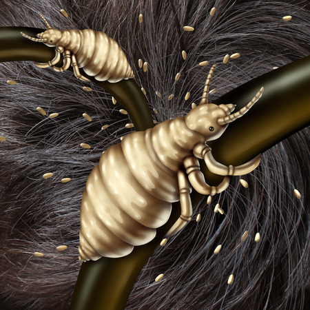 lice: Lice in hair problem as a medical concept with a macro close up of a human head with an infestation of parasitic nits or eggs hatching from a louse insect as a symbol of infection and treatment.