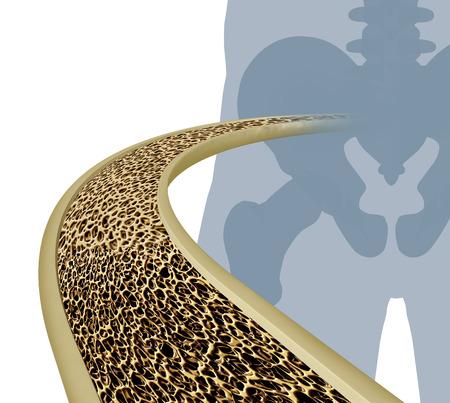 hip fracture: Osteoporosis ilustraci�n m�dica concepto como un diagrama de primer plano de la parte interior de un hueso humano a partir de una articulaci�n de la cadera del esqueleto como una condici�n normal y saludable se degrada poco a poco a la masa �sea anormal malsana sobre un fondo blanco.