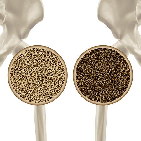 osteoporosis: Osteoporosis ilustración médica concepto de atención de salud que muestra la articulación de la cadera del esqueleto humano como un primer plano de un diagrama de hueso poroso saludables y no saludables.